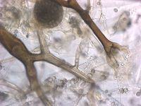 Rhizopus Microphoto from EMLab P&K
